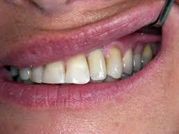 capsule dei denti