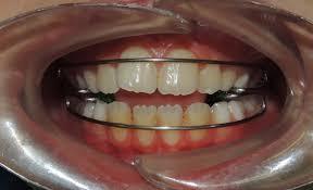 apparecchio-per-i-denti