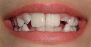 ricostruzione-dente