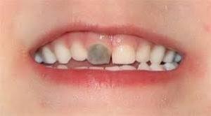 denti-neri
