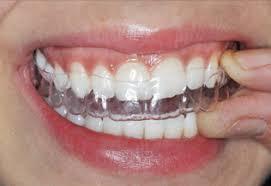 mascherine per denti